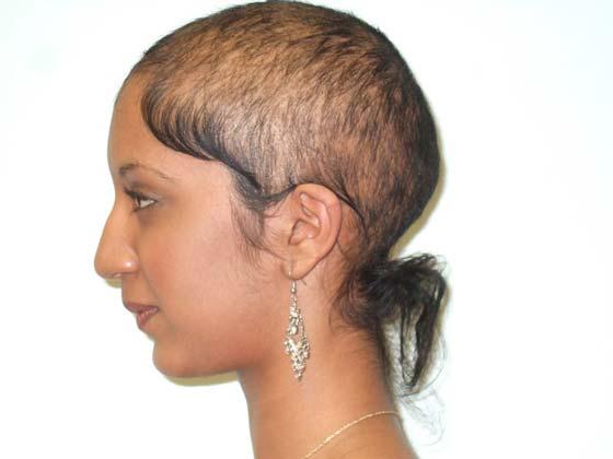 Quitar para siempre los cabellos en la zona del bikini por los medios públicos