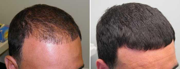 Causas de caida del cabello en hombres
