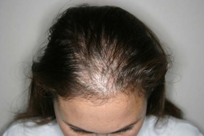 mujeres-pelo-perdida-de-cabello