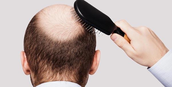 tratamiento para recuperar el cabello