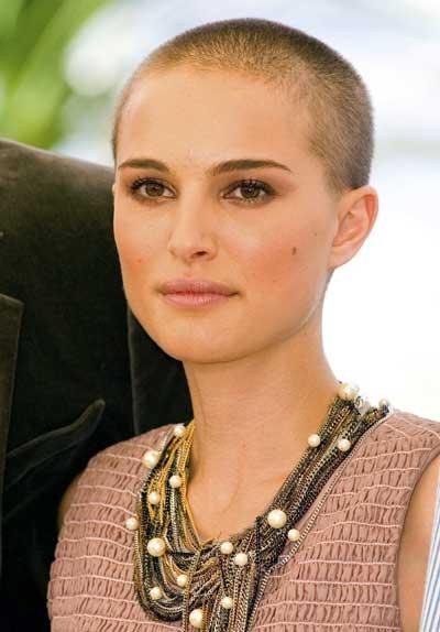 Descubri cuales son los mejores tratamientos para la caida del cabello