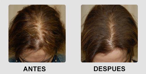 resultados de la mesoterapia capilar en mujeres
