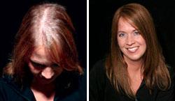 Cuanto cae por término medio el cabello de la cabeza de la persona por día