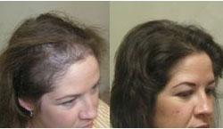 tratamiento de cabello despues del embarazo