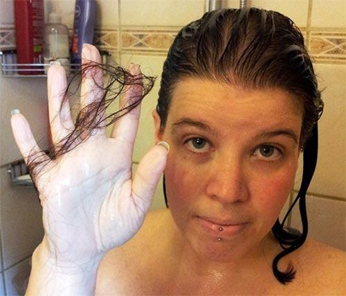 Las máscaras para los cabellos contra la caída la vitamina y dimeksid