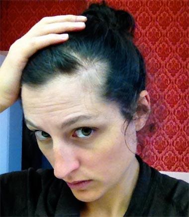 shampoo-anti-caida