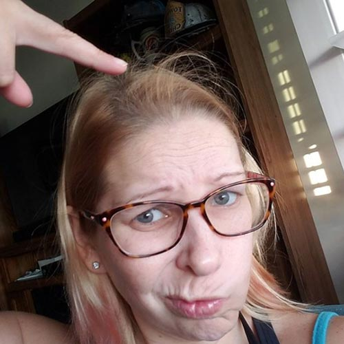 caida de cabello