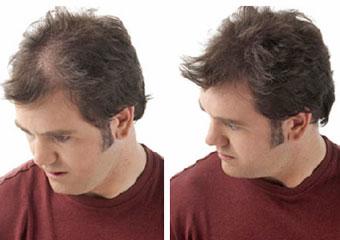 recuperar el cabello con vitaminas