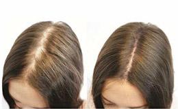 vitaminas para crecer el pelo en mujeres