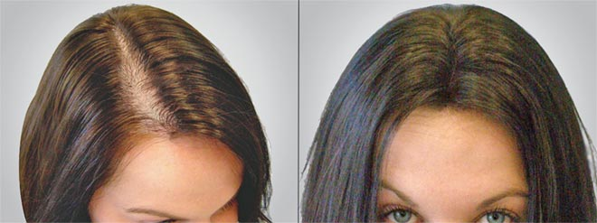 El medio para la depilación comprar en el Internet la tienda