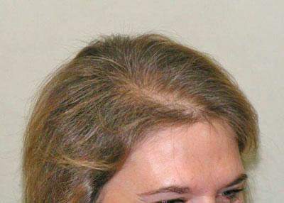 los anticonceptivos no dieron resultados en su cabello