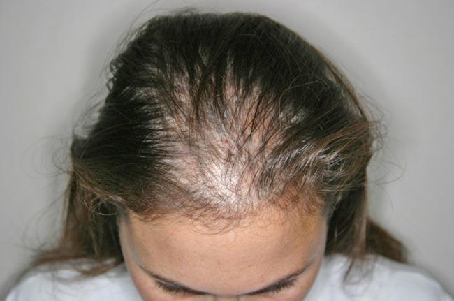 El transbordo de los cabello después de la lesión