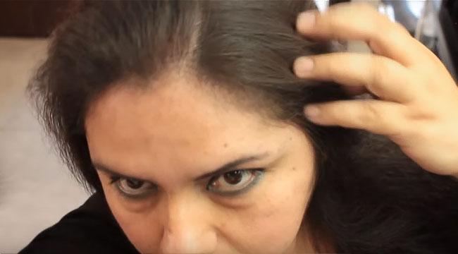 los pelos finos se vuelven mas gruesos