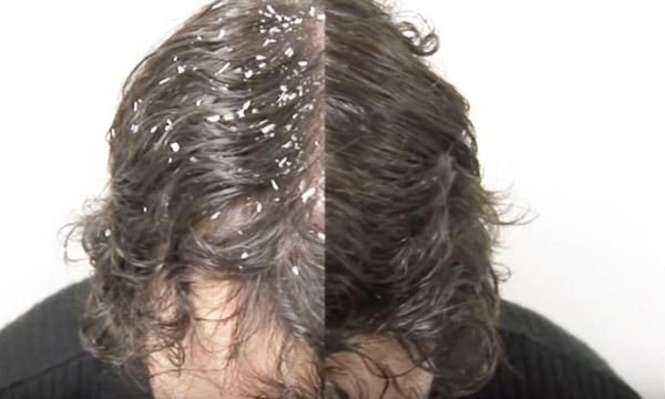 head and shoulders y shampoos de supermercados