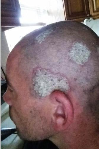 renovación de las células de la piel