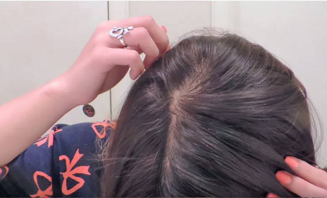 se usa en el cuero cabelludo