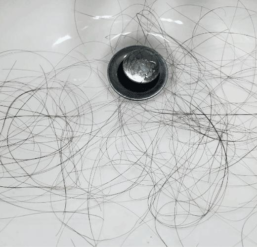 es normal perder pelos al lavarlo