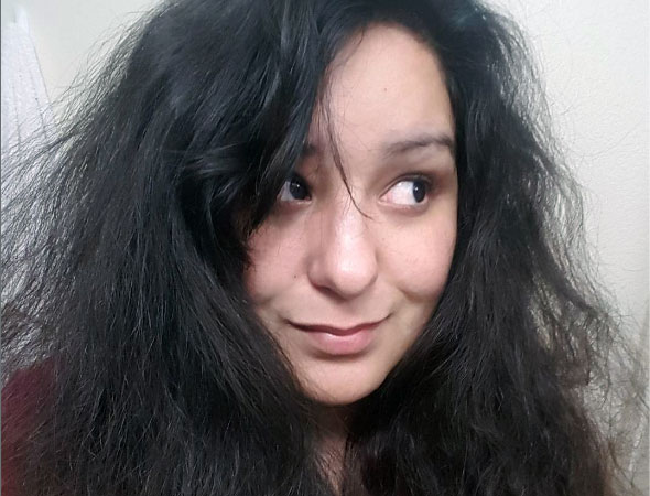 reacciones en el cuero cabelludo
