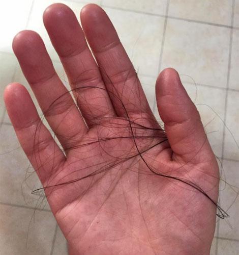 cuando el ciclo termina el pelo se cae