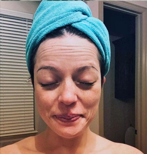 que shampoo conviene usar