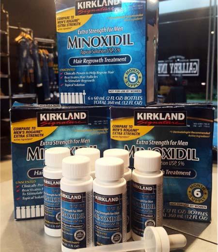 tratamiento que mejor funciona es el minoxidil 5%