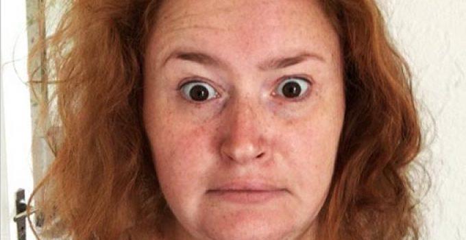 tratamiento de rogaine dos veces por dia