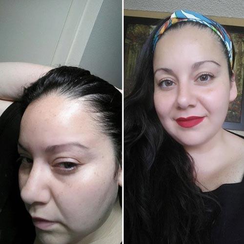 acumulación de químicos en cuero cabelludo