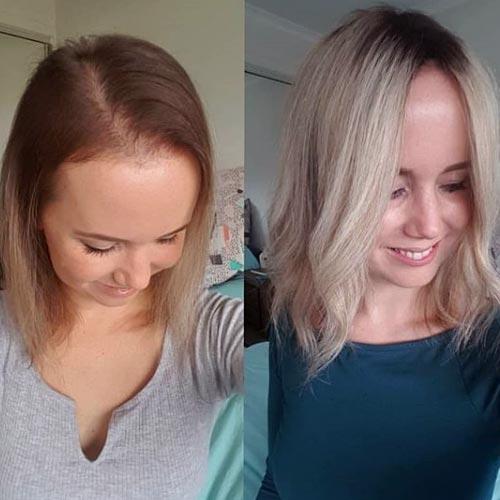 acelerar el crecimiento de nuevos cabellos