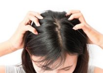 has lice