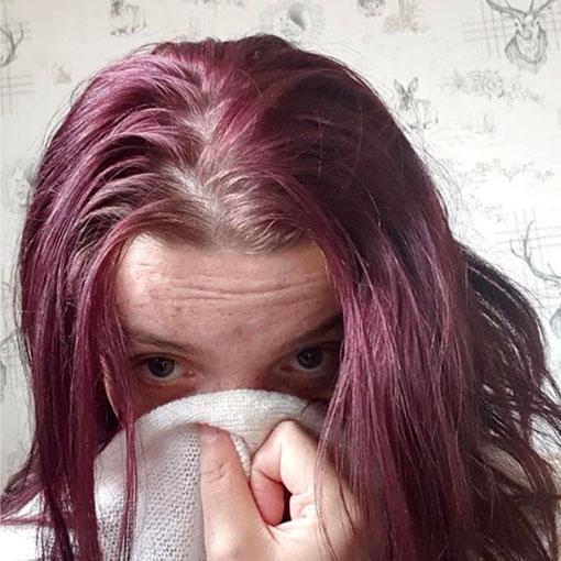 pelo desprende mal olor