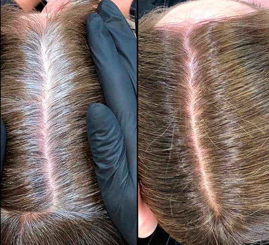 without staining highlights